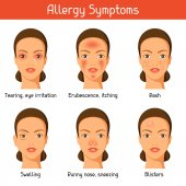 Allergy symptoms Vector illustration for medical websites advertising medications