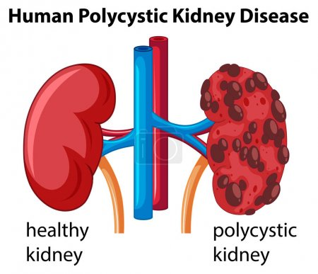 Illustration for Diagram showing human polycystic kidney disease illustration - Royalty Free Image