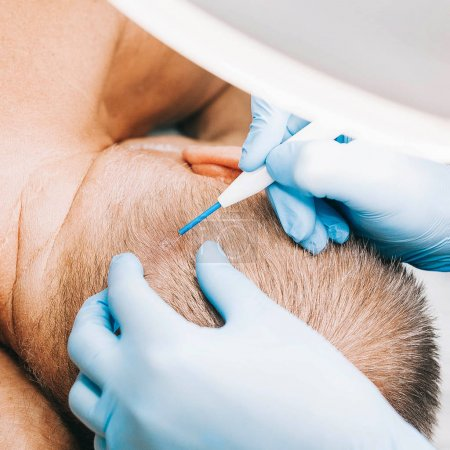 the doctor-cosmetologist does a cosmetology procedure on the head of a man to remove a birthmark, warts