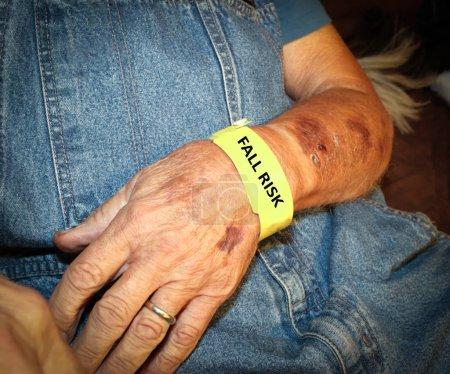 Elderly Man Wearing Fall Risk Bracelet