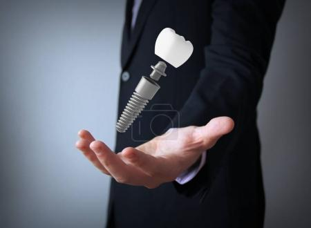 hand of businessman holding dental prosthesis , 3d rendering