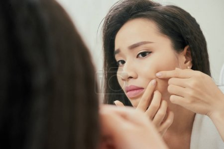 woman squeezing out pimple on check