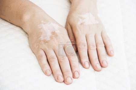 Photo for Vitiligo affected parts on a female hand - Royalty Free Image