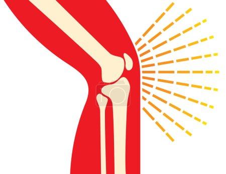 knee joint bones pain icon