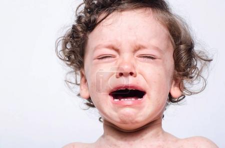 Portrait of a cute sick baby boy crying.