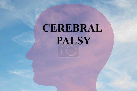 Título de parálisis cerebral