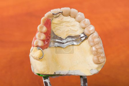 Photo for Dental skeletal prosthesis on gypsum casting. - Royalty Free Image