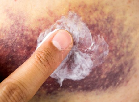 Photo for Cropped image of a young woman putting moisturizer onto her finger on a great haematoma - Royalty Free Image