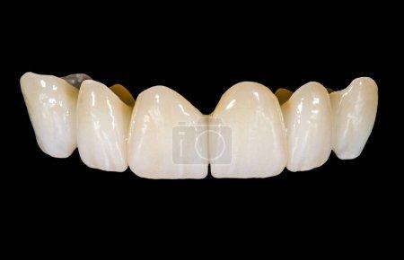 Photo pour Pont de céramique dentaire sur fond noir isolé - image libre de droit