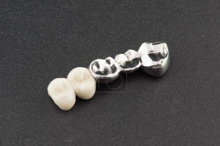 Bridged dental prostheses