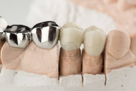 Bridged dental prostheses