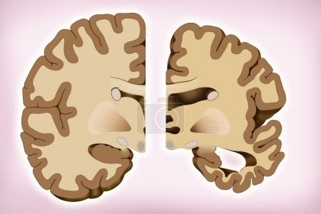 This illustration shows the comparison of two halves of the brain, a healthy half and another with Alzheimer's