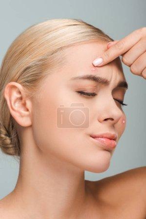 Photo pour Fille mécontente et nue touchant le visage avec acné isolée sur grise - image libre de droit