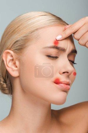 Photo pour Fille mécontente et nue touchant le visage avec des boutons rouges isolés sur - image libre de droit