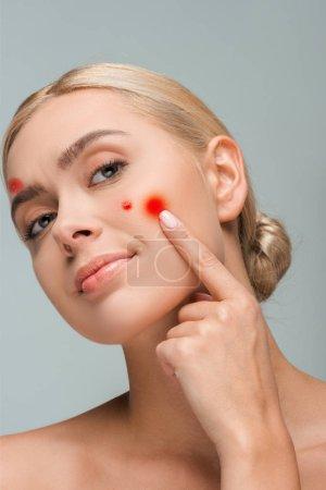 Photo pour Une jeune fille nue touchant le visage avec des boutons rouges isolés sur - image libre de droit