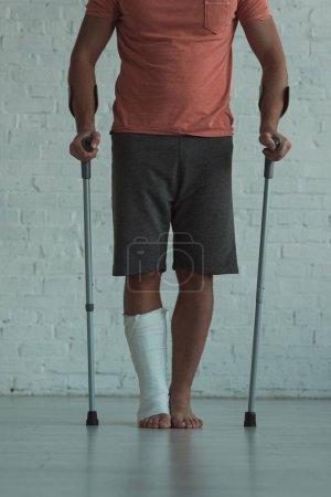 Photo pour Vue en croûte de l'homme avec jambe en pansement de plâtre tenant des béquilles - image libre de droit