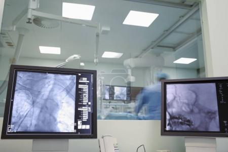X-ray monitoring of neurosurgery on human brain in the hospital