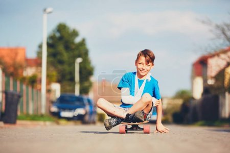 Photo for Mischievous boy with broken hand injured after accident on skateboard. - Royalty Free Image