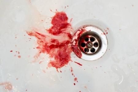 Foto de Sangre en el fregadero en el dentista - Imagen libre de derechos