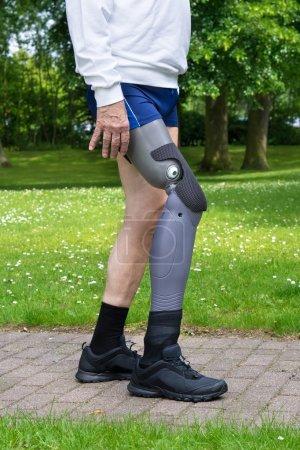 Man with false leg