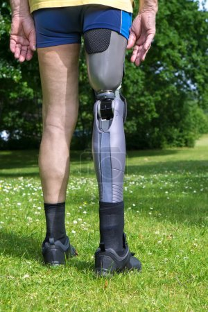Photo for Close up rear view on gray plastic prosthetic leg of single man in yellow shirt and blue shorts standing in green grass with white clover flowers. - Royalty Free Image