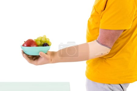 Photo for Profile View of Man with Prosthetic Arm Wearing Bright Yellow T-Shirt Holding Small Bowl of Fresh Fruit in Studio with White Background and Copy Space - Royalty Free Image