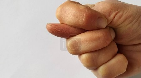 It's a fig. A fist with a thumb stuck between the ...