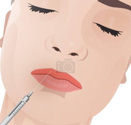 Illustration pour Belle femme visage pendant la procédure cosmétologique. Injections de lèvre d'acide hyaluronique. Illustration vectorielle aux couleurs beige clair . - image libre de droit