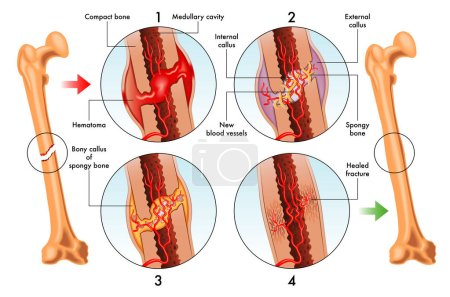 Medical illustration of stages of bone fracture repair