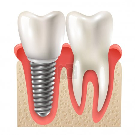 Illustration for Dental implants and tooth set model closeup side view realistic image vector illustration - Royalty Free Image