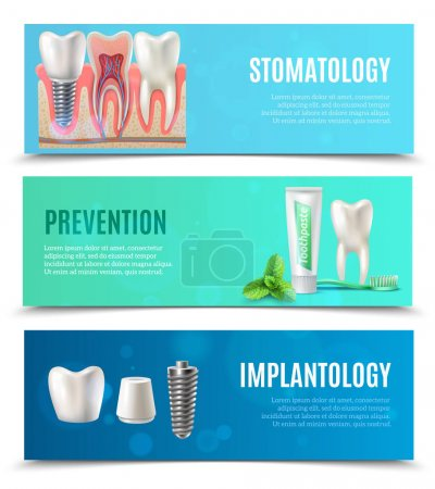 Dental Implants 3 Horizontal Banners Set