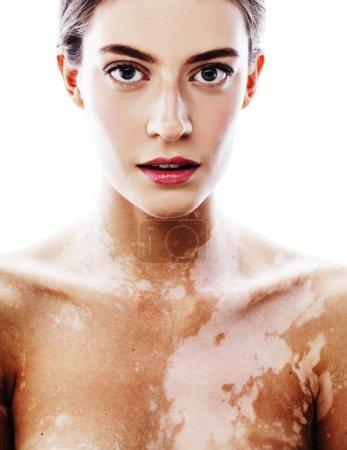 young woman with vitiligo