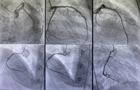 Photo pour Angiographie coronarienne, angiographie coronarienne gauche et droite - image libre de droit