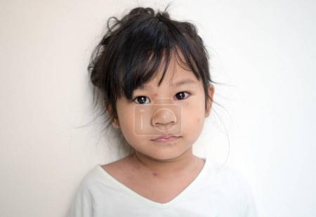 Varicella virus or chickenpox bubble rash on  Asian little girl