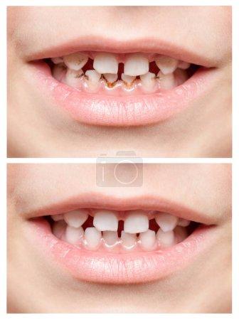 Teeth. Children's mouth. Photo closeup. Collage