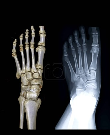 Comparison of left foot AP view 3D rendering image and X-ray image for diagnostic fracture and Gouty arthritis .