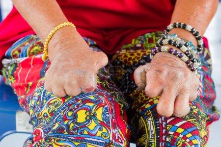 Photo pour Gros plan que femme asiatique des mains de la vieille femme souffrant de la lèpre amputé des mains avec des vêtements colorés - image libre de droit