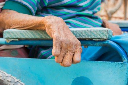 Photo pour Closeup main du vieil homme souffrant de la lèpre, la main amputée, sur fauteuil roulant - image libre de droit