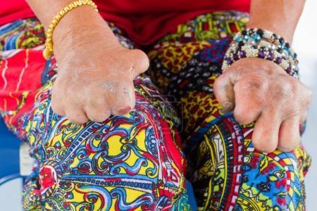 Photo pour Gros plan que femme asiatique des mains de la vieille femme souffrant de la lèpre amputé des mains. - image libre de droit