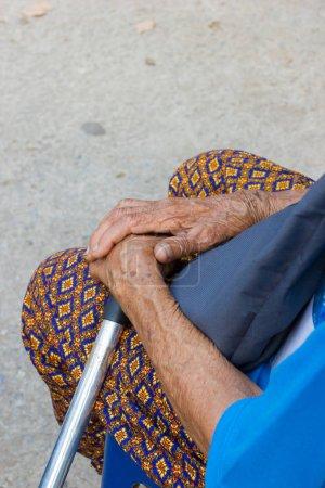 Photo pour Closeup main de vieille femme asiatique, souffrant de la lèpre, main amputée - image libre de droit