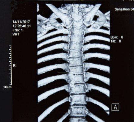 Radiografía de resonancia magnética de columna