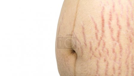 Pregnant woman with cracks on skin