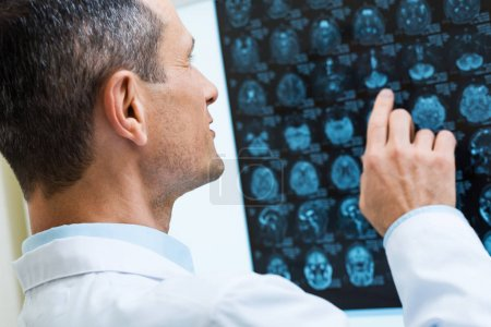 Male doctor looking through computer tomography results