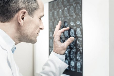 Nice handsome doctor looking at the X ray image