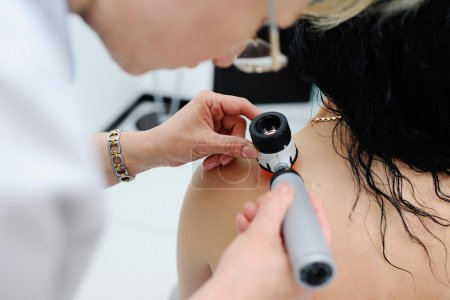 melanoma diagnosis. the doctor examines the patients mole