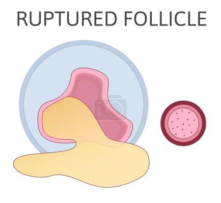 Rupturierter Follikel. Stadium der Entwicklung von Follikel und Menstruationszyklus. Eisprung. Der Eierstock wird aus den Eierstockfollikeln freigesetzt. Farbige flache Vektordarstellung isoliert auf weißem Hintergrund.