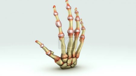 Rheumatoid arthritis close up