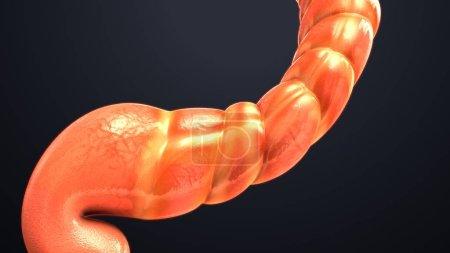 Human Intestine Model