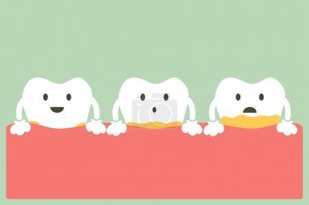 Illustration pour Vecteur de dessin animé dentaire, maladie parodontale dentaire avec plaque ou tartre - image libre de droit