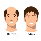 Men thinning hair treatment before and after